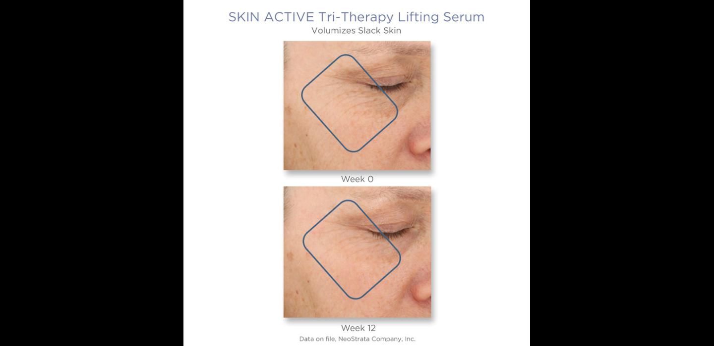 serum med Hyaluronsyra - Neostrata Tri Therapy Lifting Serum