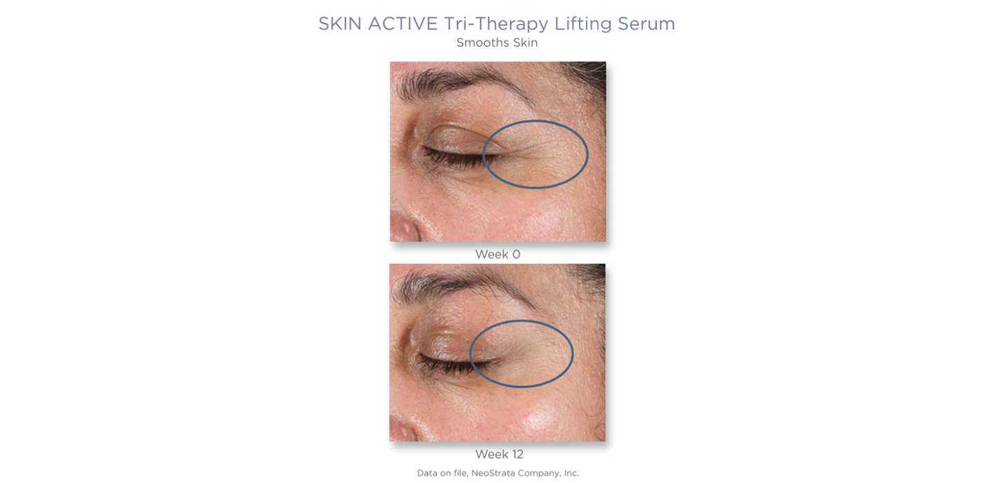 serum med Hyaluronsyra - Neostrata Tri Therapy Lifting Serum