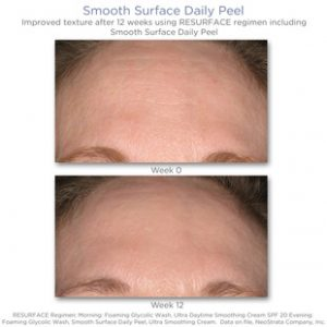 NeoStrata Smooth Surface Daily Peel_resultat