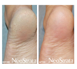 neostrata-pds-beforeafter-heel_small