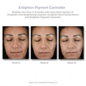 pigment controll resultat