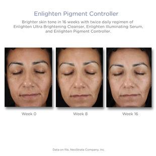 NeoStrata Enlighten Pigment Controller - Kräm mot pigmentfläckar